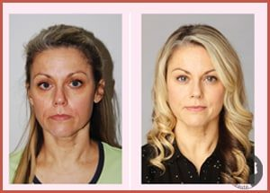 facial-flex-comparatif